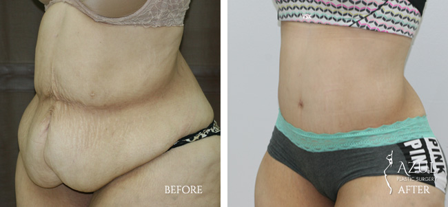 Houston Tummy Tuck patient #10e