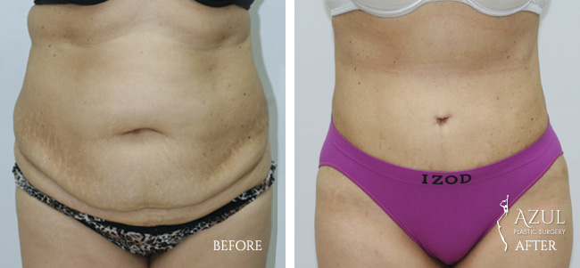 Houston Tummy Tuck patient #11a