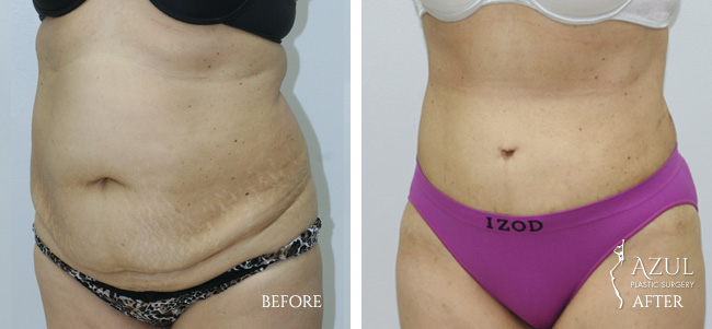 Houston Tummy Tuck patient #11b