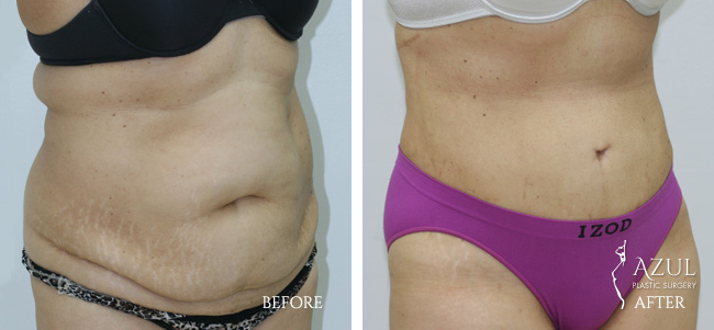 Houston Tummy Tuck patient #11c