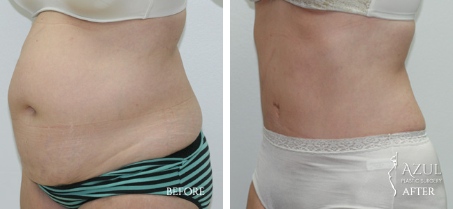 Houston Tummy Tuck patient #12b