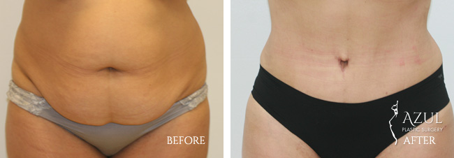 Houston Tummy Tuck patient #13a