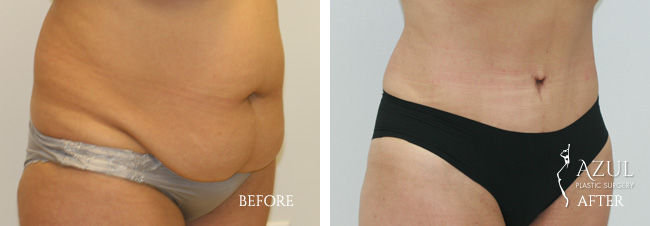 Houston Tummy Tuck patient #13b