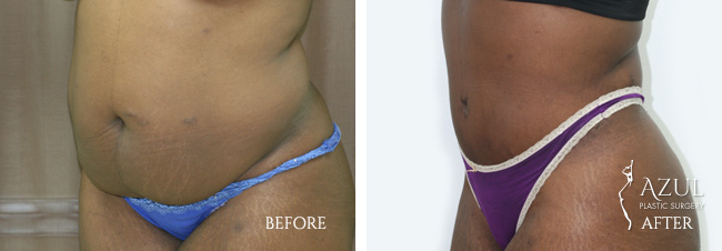 Houston Tummy Tuck patient #14b