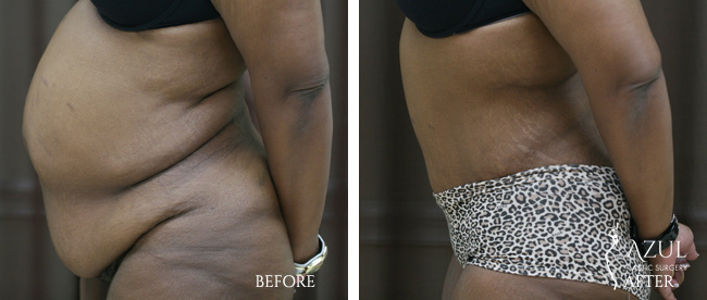 Houston Tummy Tuck patient #16a