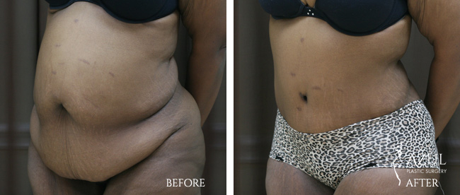 Houston Tummy Tuck patient #16b