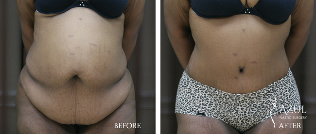 Houston Tummy Tuck patient #16c