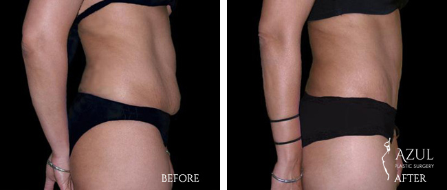 Houston Tummy Tuck patient #17