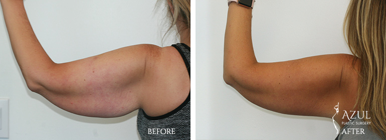 Top-Rated Plastic Surgeon for Arm Lift