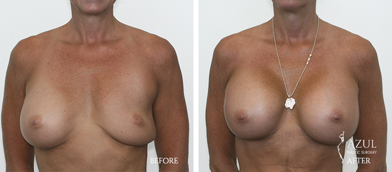 Houston Top Rated Breast Implant Revision Surgeon