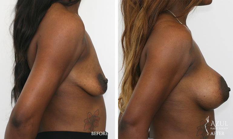 Top Houston Breast Lift Surgeon