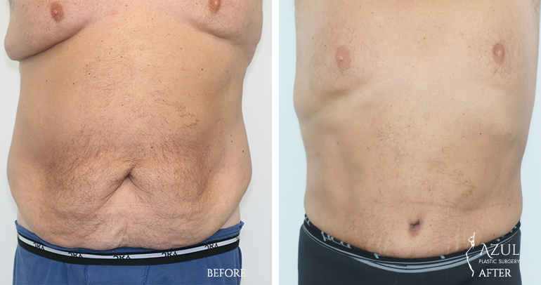 Houston Top Rated Body Lift Surgeon