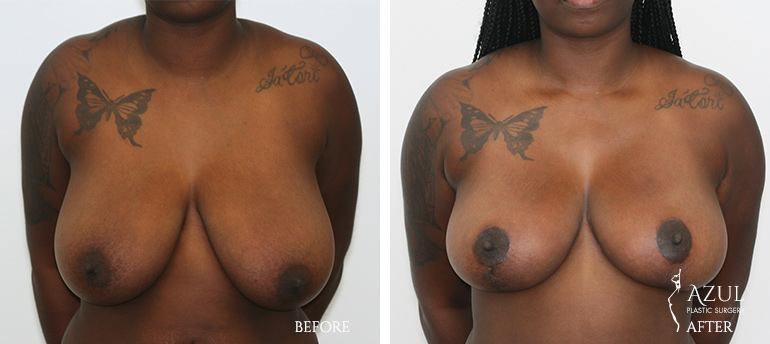 Houston Top Rated Breast Reduction Surgeon