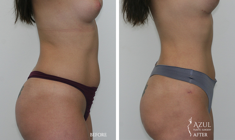 Houstop Top Rated Liposuction Surgeon