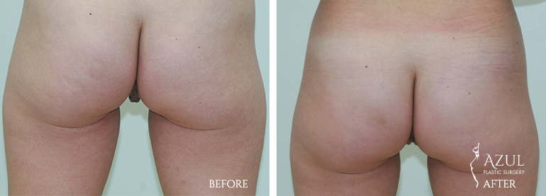 Top Houston Vaginal Rejuvenation Surgery