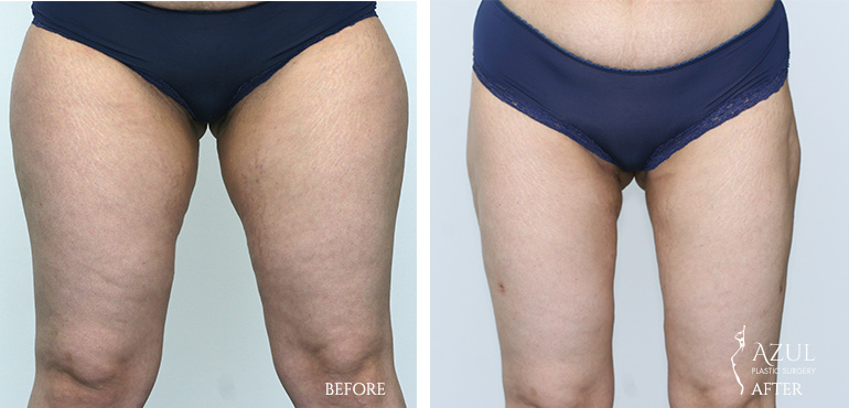 Houston Top Rated Thigh Lift Surgeon