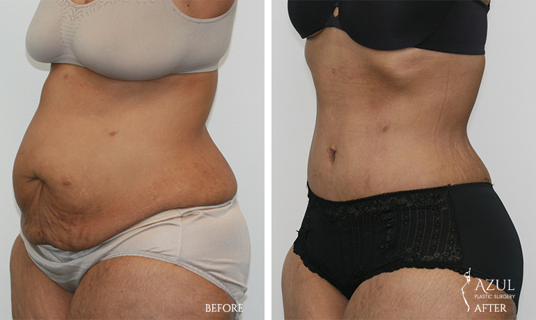 Houston Top Rated Tummy Tuck Surgeon