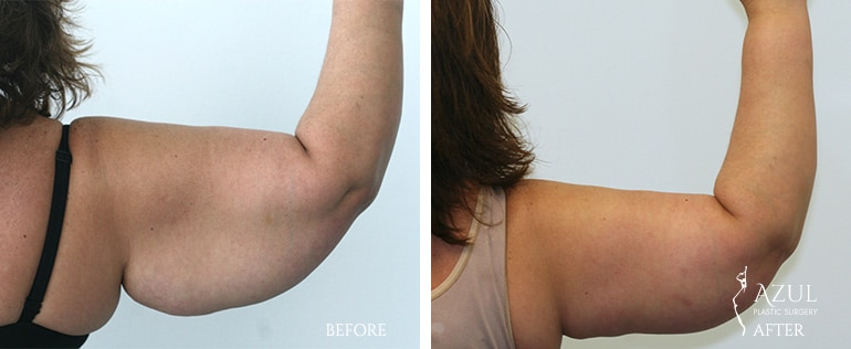 Best Plastic Surgeon for Arm Lift