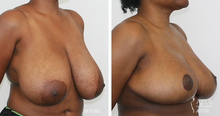 Houstop Top Rated Breast Reduction Surgeon