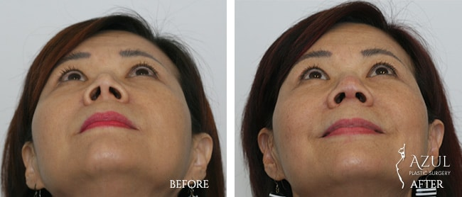 Houstop Top Rated Rhinoplasty Surgeon