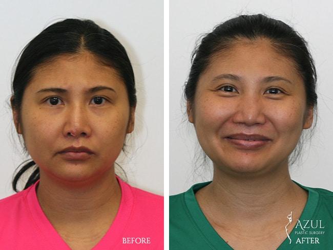 Top-Rated Ethnic Rhinoplasty Plastic Surgeon in Houston, TX