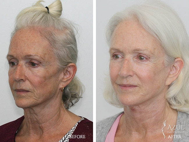 Houstop Top Rated Face Lift Surgeon