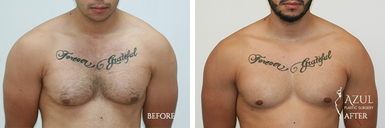 Houstop Top Rated Male Breast Reduction Surgeon