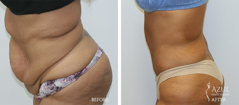 Houstop Top Rated Tummy Tuck Surgeon